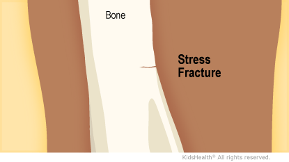 Illustration: Stress Fracture