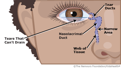 tear duct obstruction illustration