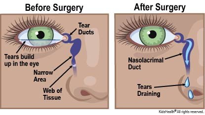 Diagram showing location of the tear duct, or nasolacrimal duct. The diagram shows that when the duct is blocked by a web of tissue, tears can't drain and they build up in the eye. When the blockage is removed by surgery, the tears can drain.