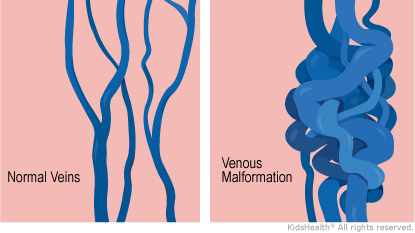 A venous malformation (VM) is a place in the body where veins haven't grown the right way. Veins in a VM tend to be larger and more tangled than normal veins. A VM in the skin usually looks like a maroon, blue, or purple spot.