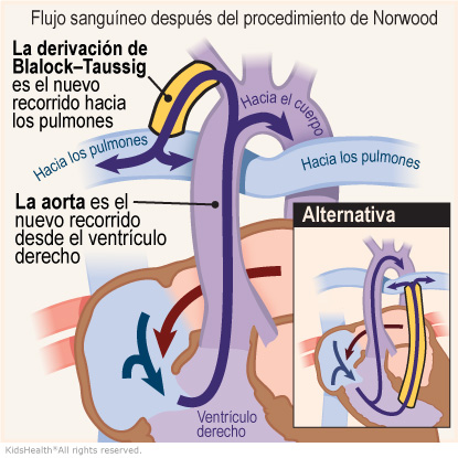 Illustration: After the Norwood procedure, blood reaches the lungs through the shunt.