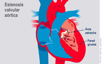Illustration: Aortic Stenosis
