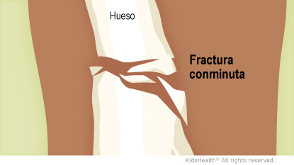 Hueso Comminuted