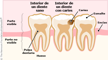 dental cavity illustration