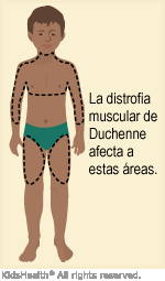 llustration: Areas affected by Duchenne muscular dystrophy