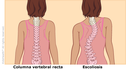 illustration: scoliosis